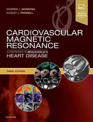 Cardiovascular Magnetic Resonance: A Companion to Braunwald's Heart Disease - Companion to Braunwald's Heart Disease (Hardback)