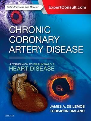 Chronic Coronary Artery Disease: A Companion to Braunwald's Heart Disease - Companion to Braunwald's Heart Disease (Hardback)