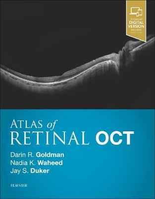 Atlas of Retinal OCT: Optical Coherence Tomography (Hardback)
