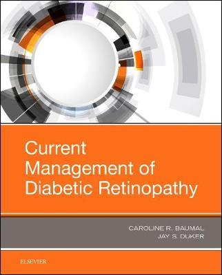 Current Management of Diabetic Retinopathy (Hardback)