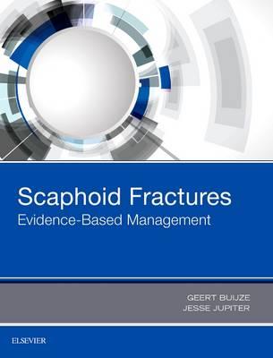 Scaphoid Fractures: Evidence-Based Management (Hardback)
