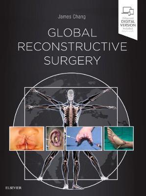 Global Reconstructive Surgery (Hardback)
