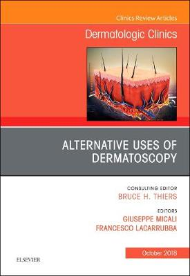 Alternative Uses of Dermatoscopy, An Issue of Dermatologic Clinics - The Clinics: Dermatology 36-4 (Hardback)