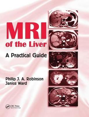 MRI of the Liver: A Practical Guide (Paperback)