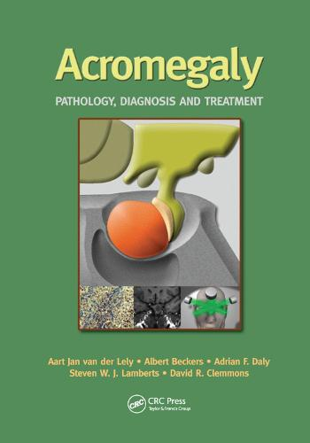 Acromegaly: Pathology, Diagnosis and Treatment (Paperback)