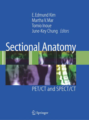 Sectional Anatomy: PET/CT and SPECT/CT (Hardback)