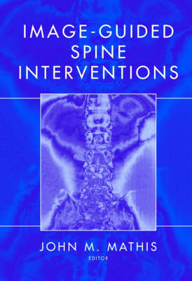 Image-Guided Spine Interventions (Hardback)