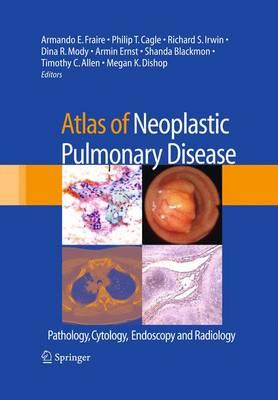 Atlas of Neoplastic Pulmonary Disease: Pathology, Cytology, Endoscopy and Radiology (Hardback)