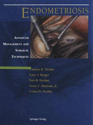 Endometriosis: Advanced Management and Surgical Techniques (Hardback)