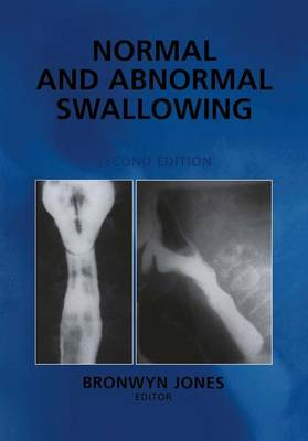 Normal and Abnormal Swallowing: Imaging in Diagnosis and Therapy (Hardback)