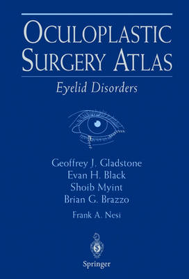 Oculoplastic Surgery Atlas: Eyelid Disorders (Hardback)