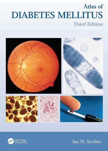 Atlas of Diabetes Mellitus - Encyclopedia of Visual Medicine Series (Hardback)