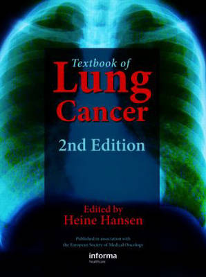 Textbook of Lung Cancer (Hardback)