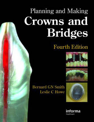 Planning and Making Crowns and Bridges (Hardback)
