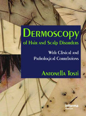 Dermoscopy of Hair and Scalp Disorders: With Clinical and Pathological Correlations (Hardback)