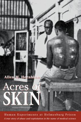 Acres of Skin: Human Experiments at Holmesburg Prison (Hardback)