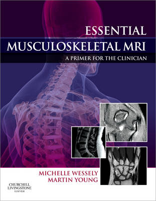 Essential Musculoskeletal MRI: A Primer for the Clinician (Hardback)
