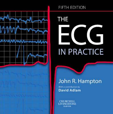 The ECG in Practice (Paperback)