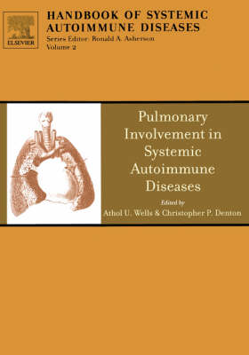 Pulmonary Involvement in Systemic Autoimmune Diseases: Volume 2 - Handbook of Systemic Autoimmune Diseases (Hardback)