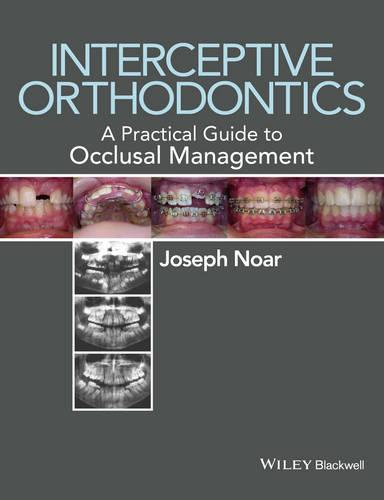 Interceptive Orthodontics: A Practical Guide to Occlusal Management (Paperback)