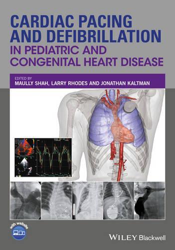 Cardiac Pacing and Defibrillation in Pediatric and Congenital Heart Disease (Hardback)