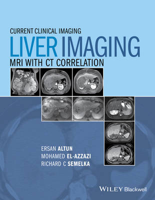Liver Imaging: MRI with CT Correlation - Current Clinical Imaging (Hardback)