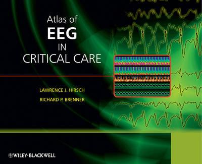 Atlas of EEG in Critical Care (Hardback)