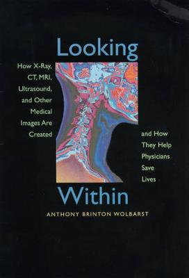 Looking Within: How X-Ray, CT, MRI, Ultrasound, and Other Medical Images Are Created, and How They Help Physicians Save Lives (Paperback)
