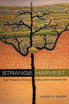 Strange Harvest: Organ Transplants, Denatured Bodies, and the Transformed Self (Paperback)