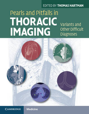 Pearls and Pitfalls in Thoracic Imaging: Variants and Other Difficult Diagnoses (Hardback)