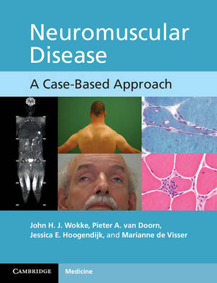 Neuromuscular Disease: A Case-Based Approach (Paperback)