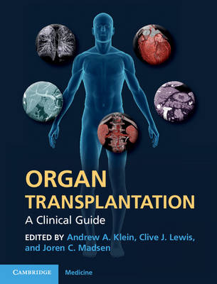 Organ Transplantation: A Clinical Guide (Hardback)