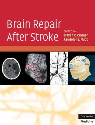 Brain Repair After Stroke (Hardback)