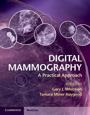 Digital Mammography: A Practical Approach (Hardback)