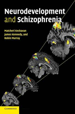 Neurodevelopment and Schizophrenia (Hardback)