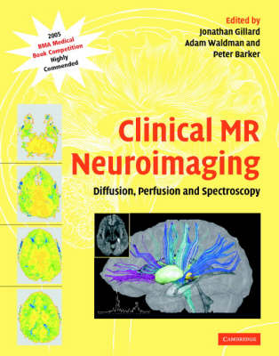 Clinical MR Neuroimaging: Diffusion, Perfusion and Spectroscopy (Hardback)