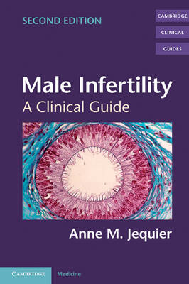 Cambridge Clinical Guides: Male Infertility: A Clinical Guide (Paperback)