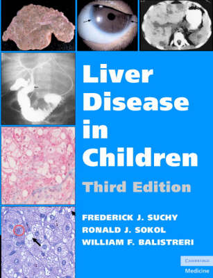 Liver Disease in Children (Hardback)