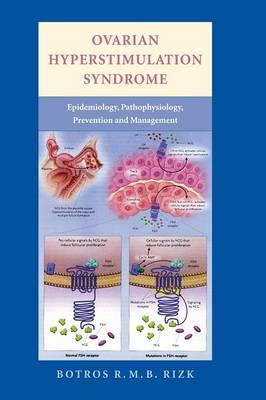Ovarian Hyperstimulation Syndrome: Epidemiology, Pathophysiology, Prevention and Management (Hardback)