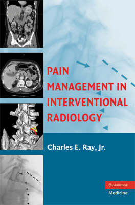Pain Management in Interventional Radiology (Hardback)