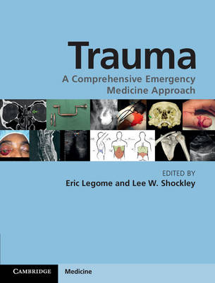 Trauma: A Comprehensive Emergency Medicine Approach (Hardback)
