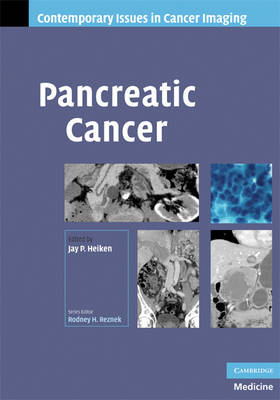 Pancreatic Cancer - Contemporary Issues in Cancer Imaging (Hardback)