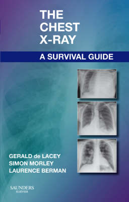 The Chest X-Ray: A Survival Guide (Paperback)