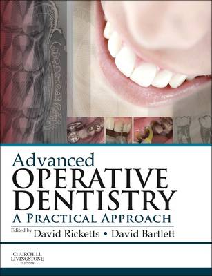 Advanced Operative Dentistry: A Practical Approach (Paperback)