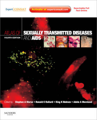 Atlas of Sexually Transmitted Diseases and AIDS: Expert Consult (Hardback)