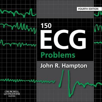150 ECG Problems (Paperback)