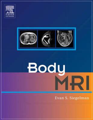 Body MRI (Hardback)