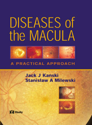 Diseases of the Macula: A Practical Approach (Hardback)