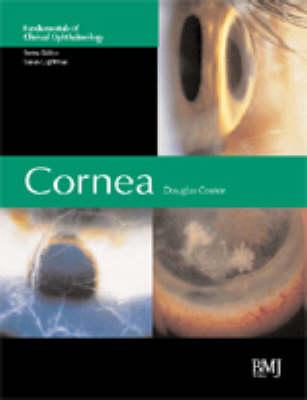 Cornea - Fundamentals in Clinical Ophthalmology (Hardback)