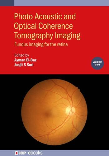 Photo Acoustic and Optical Coherence Tomography Imaging Volume 2: Fundus Imaging for the Retina - IOP ebooks (Hardback)